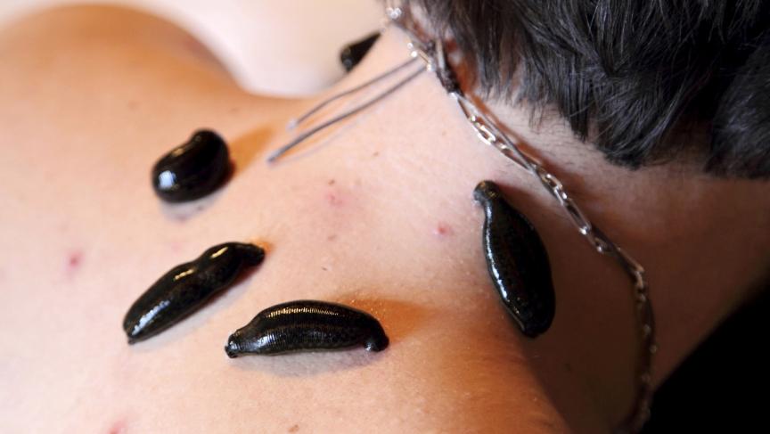 טיפול במיגרנות עם עלוקות רפואיות